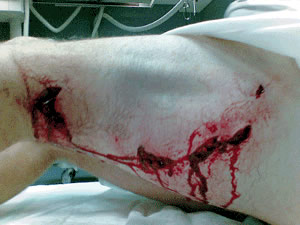 great white shark attack leg wound south africa