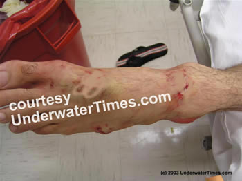shark attack wound foot New Smyrna 2