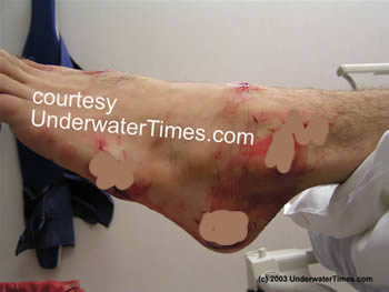 shark attack wound foot New Smyrna 4
